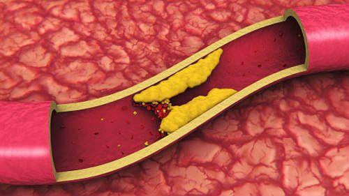 Холестериновая бляшка в сосуде