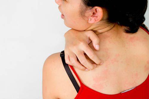Аллергия на имбирь симптомы