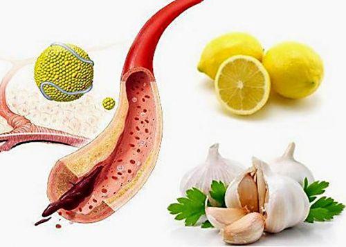 Чеснок и лимон для чистки сосудов